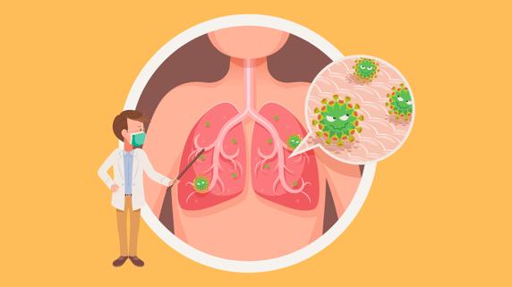 doctor explains Pneumonia
