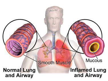 Blausen_0620_Lungs_NormalvsInflamedAirway
