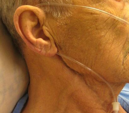 Nasal cannula over patient's ear