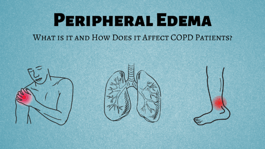 Peripheral Edema: What is it and How Does it Affect COPD Patients?