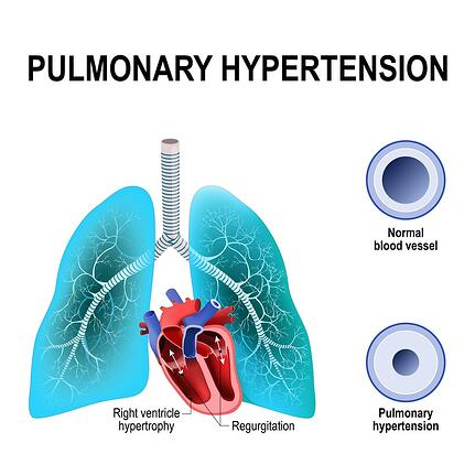 Diagram showing the effects of pulmonary hypertension.