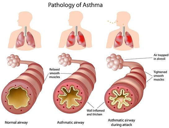 Diagram showing the effects of asthma and asthma attacks.