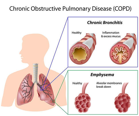 Diagram showing the difference between emphysema and chronic bronchitis.
