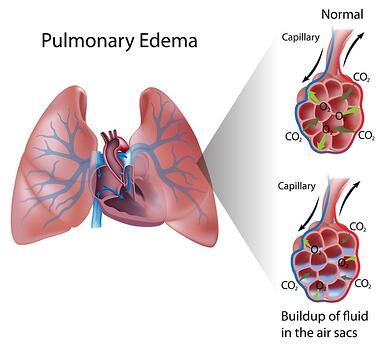 Diagram showing the effects of pulmonary edema.