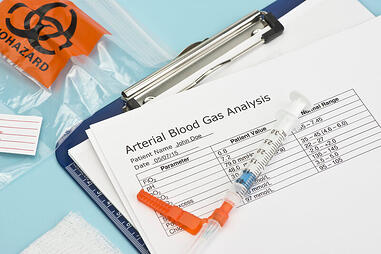 Arterial blood gas test results.