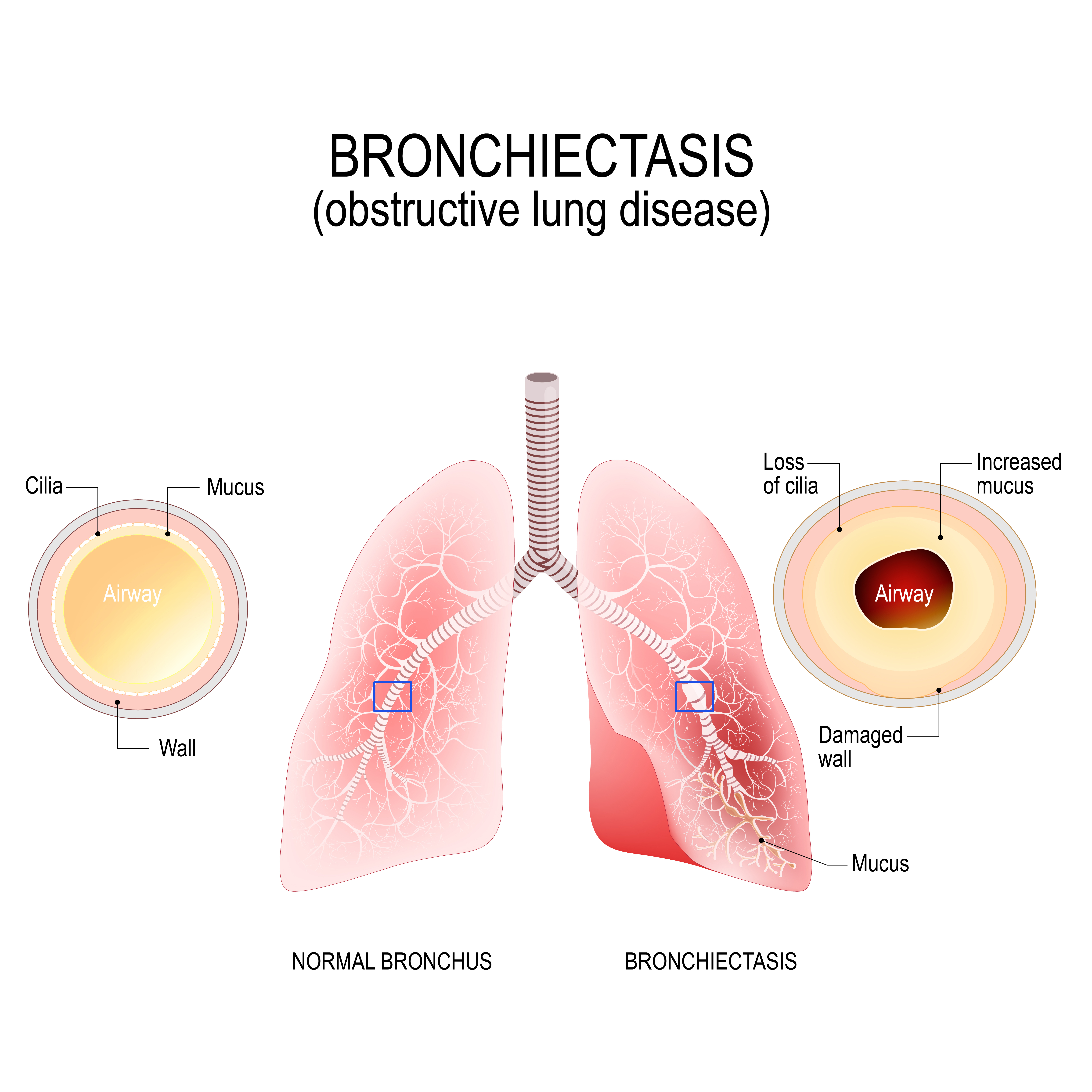 Bronchiectasis: obstructive lung disease