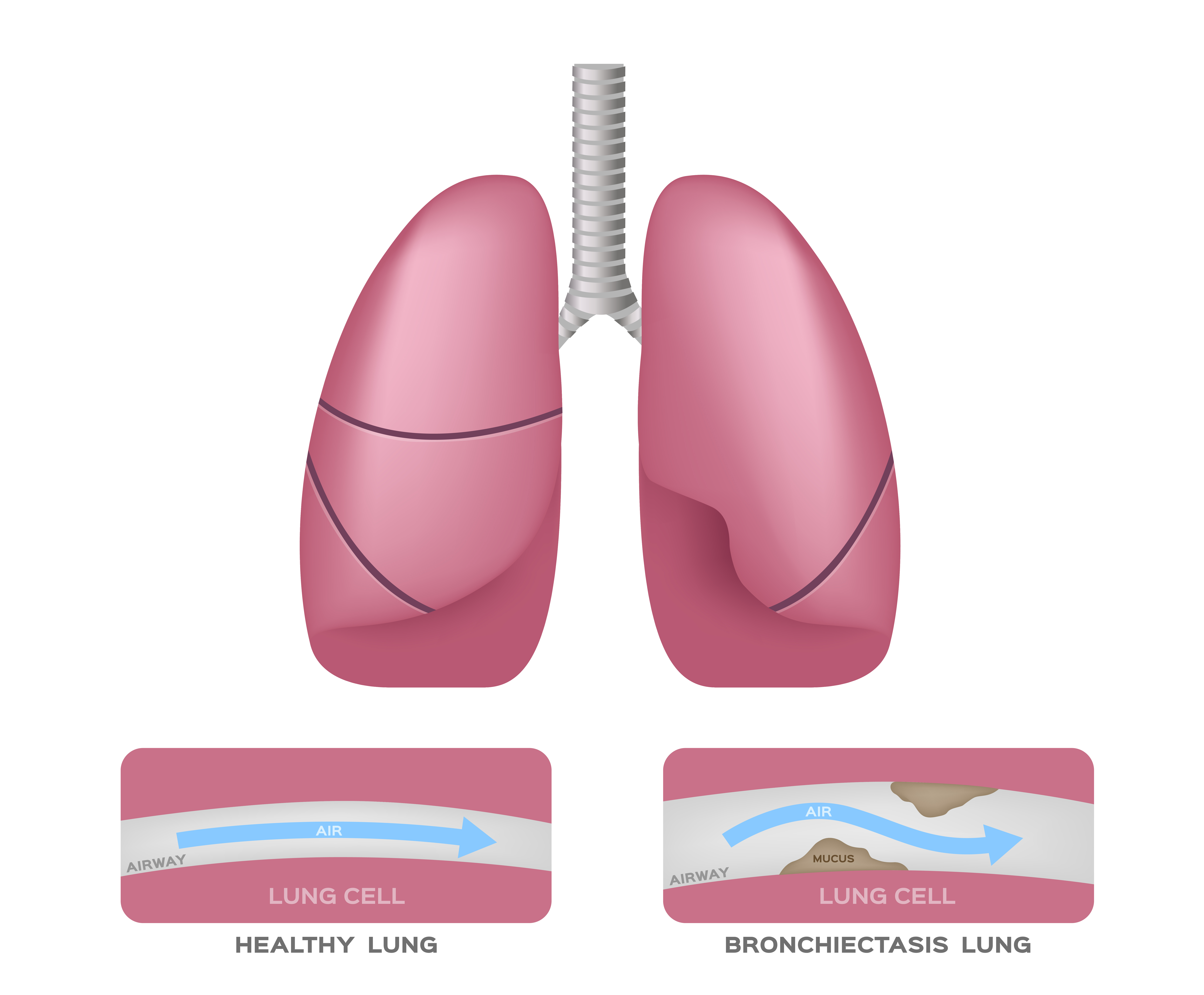 Bronchiectasis in the lungs