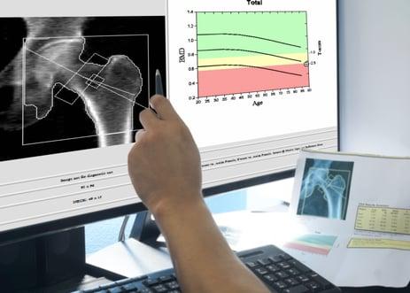 Osteoporosis testing