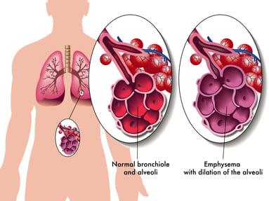 Illustration showing damaged alveoli due to emphysema.