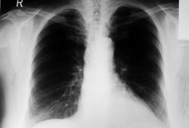 X-ray of the human lungs.