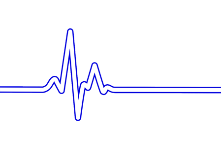 heart-rate-1375322_1280