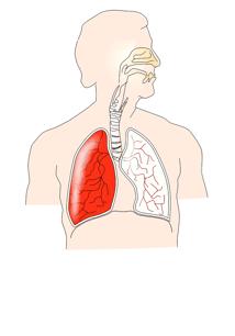 Bronchiectasis versus COPD